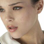 Điều trị tàn nhang ở đâu hiệu quả và uy tín?